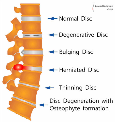 Different Types of Spine Conditions